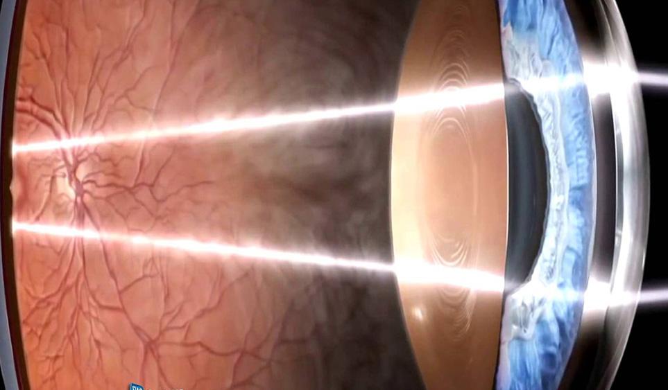 ¿Por qué proteger los ojos de los niños de la dañina luz azul?